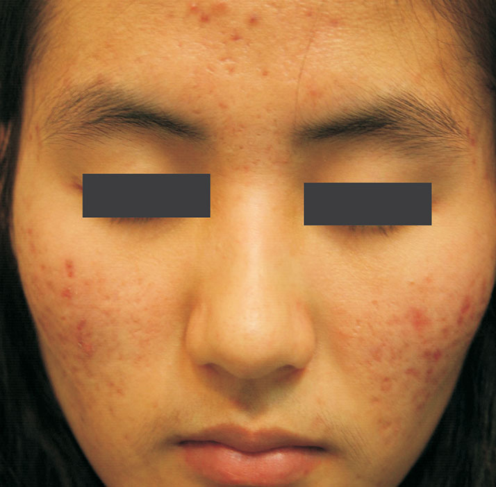 photo of patient after acne treatment
