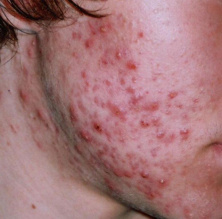 photo of patient before acne treatment