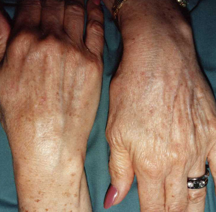 photo of patient after lentigines treatment