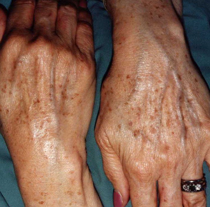 photo of patient before lentigines treatment
