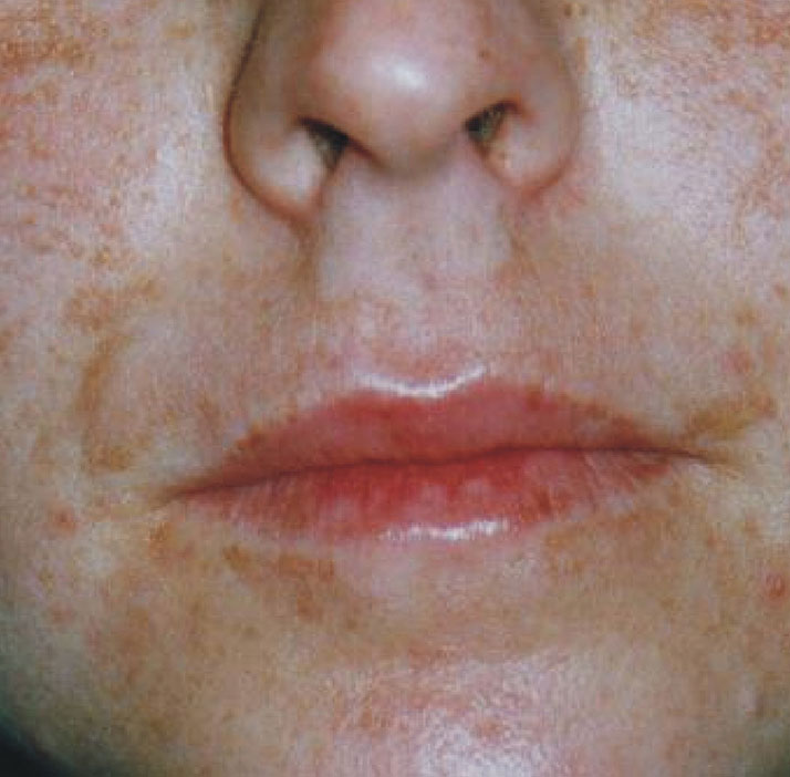 photo of patient after melasma treatment