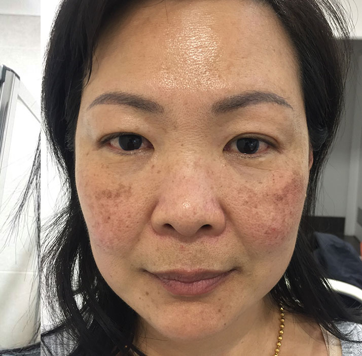 photo of patient before melasma treatment