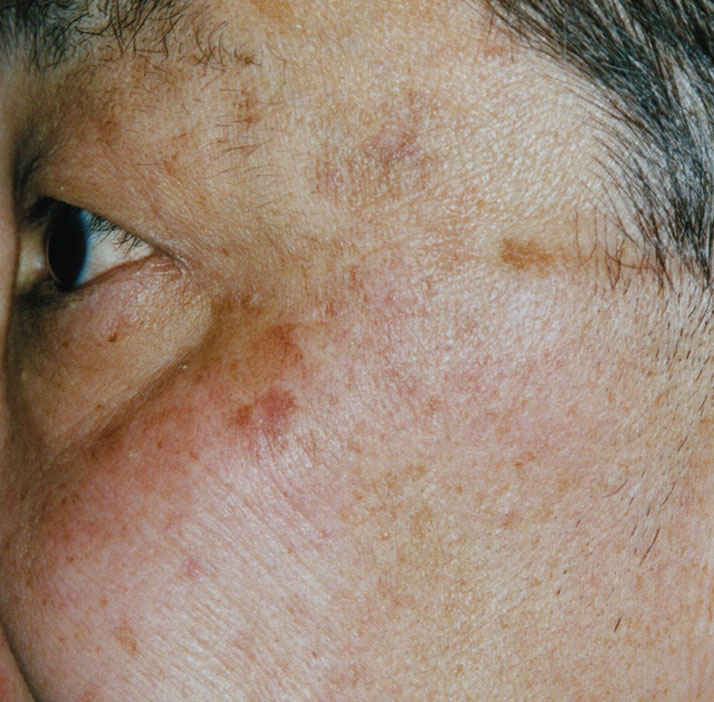 photo of patient after pigmented lesions treatment