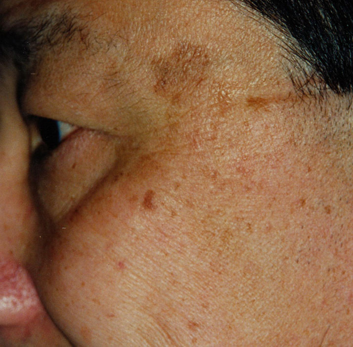 photo of patient before pigmented lesions treatment