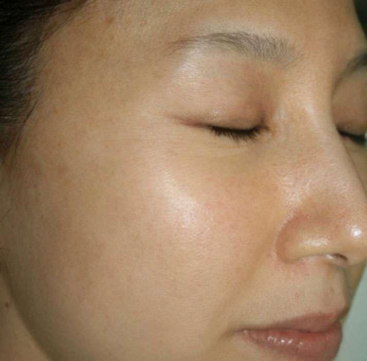 photo of patient after rejuvenation treatment