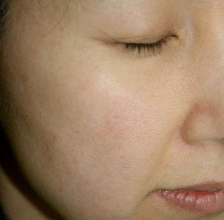 photo of patient before rejuvenation treatment