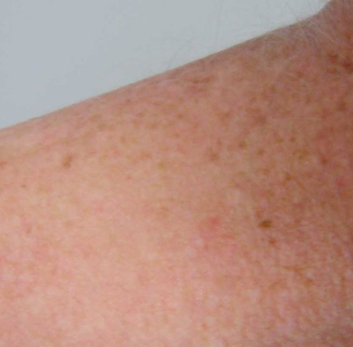 photo of patient after skin tag treatment