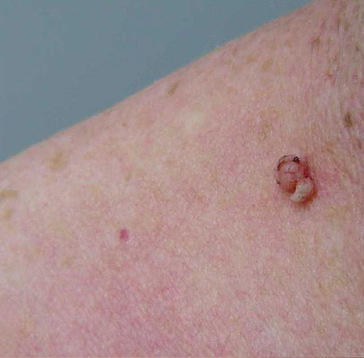 photo of patient before skin tag treatment