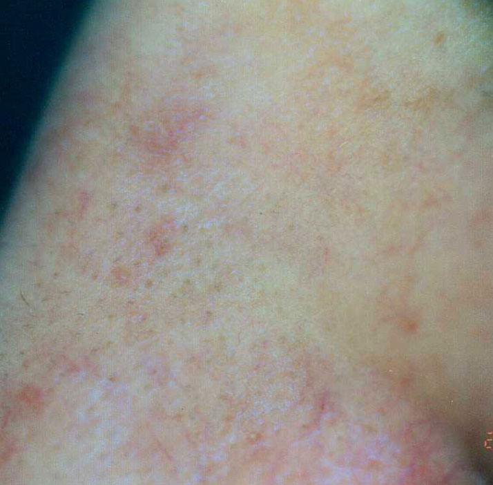photo of patient after spider angioma treatment