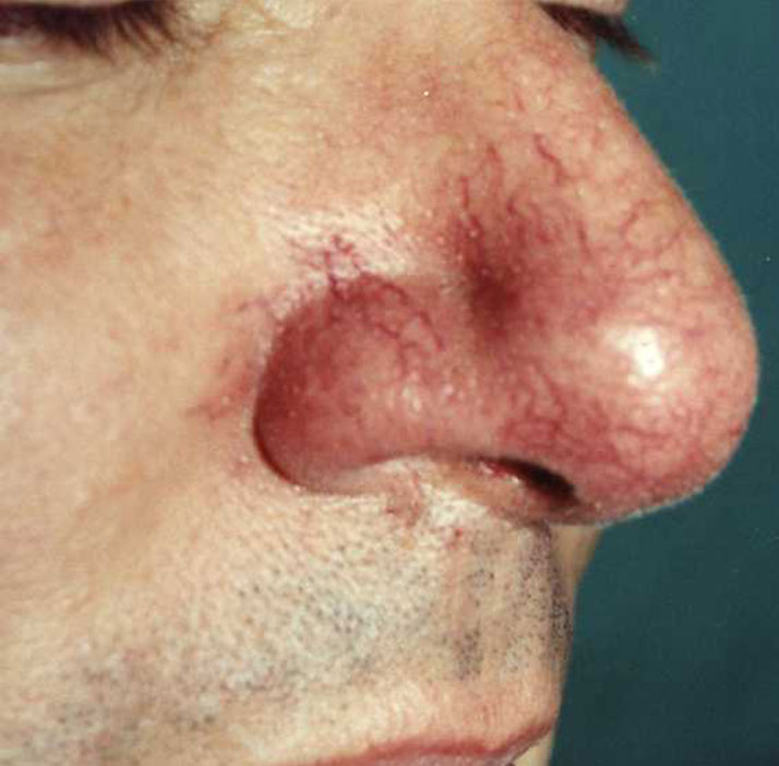 photo of patient before spider angioma treatment
