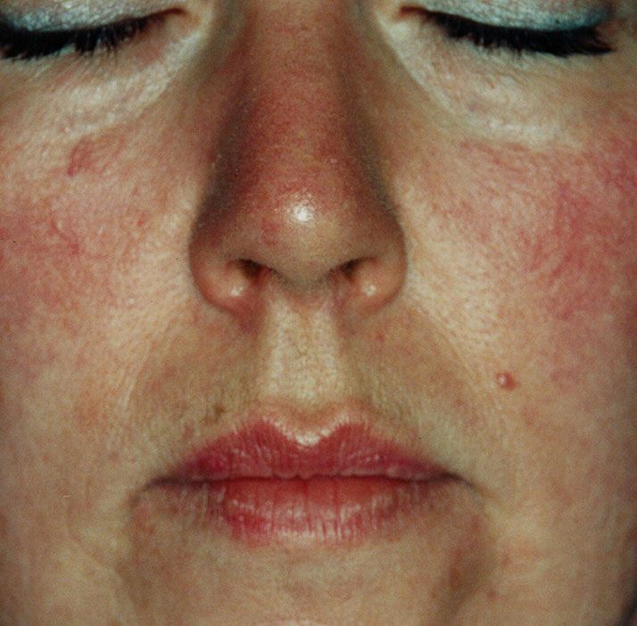 photo of patient after telangiectasia treatment