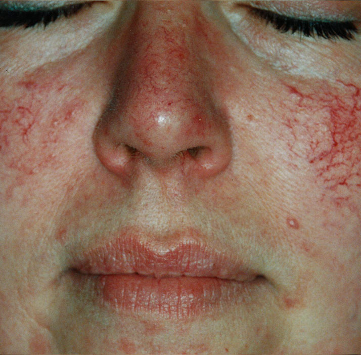 photo of patient before telangiectasia treatment