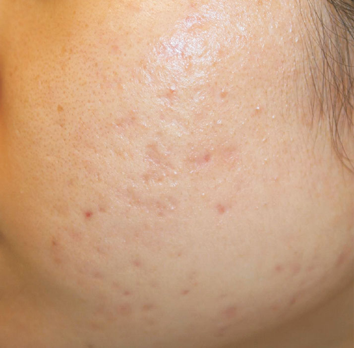 patient with acne after treatment
