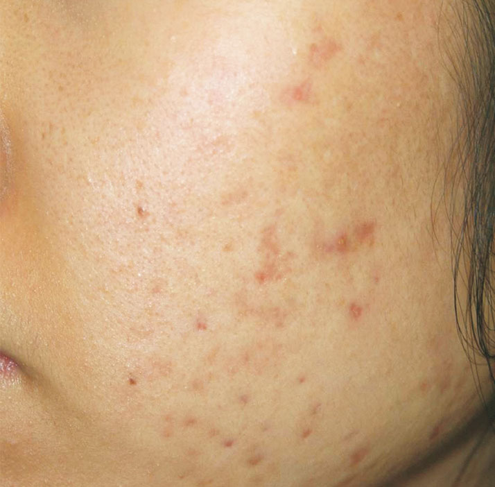 patient with acne before treatment