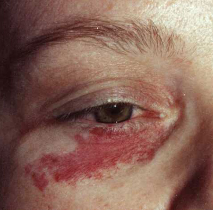 port wine stain on patient before treatment
