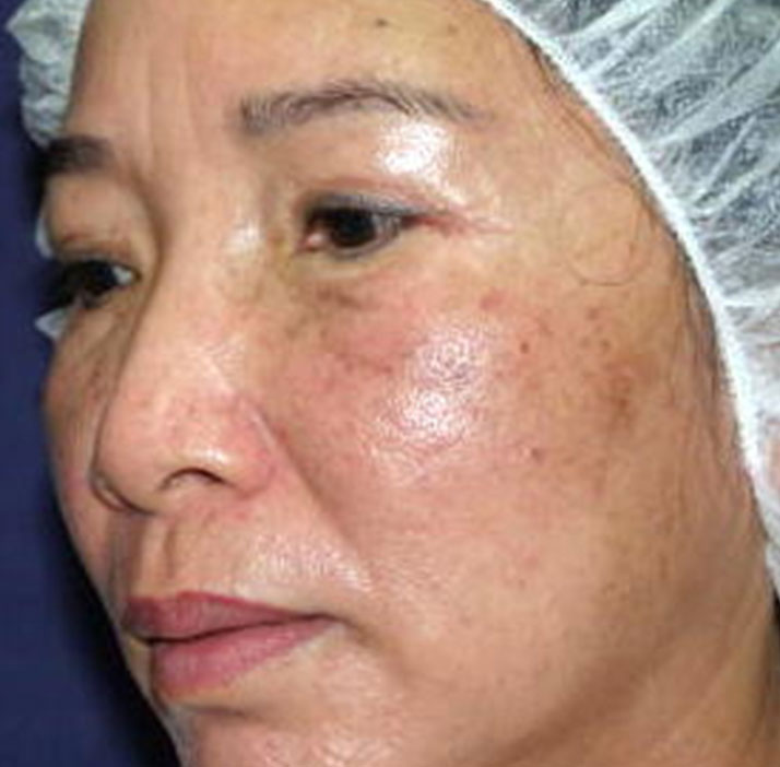 photo of patient after rejuvenation treatment