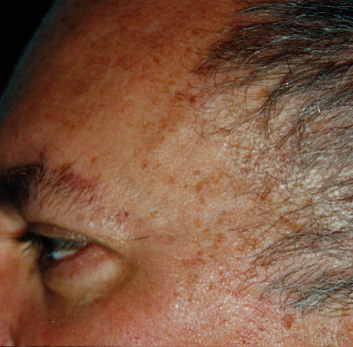photo of patient after sebbhoroeic keratosis treatment