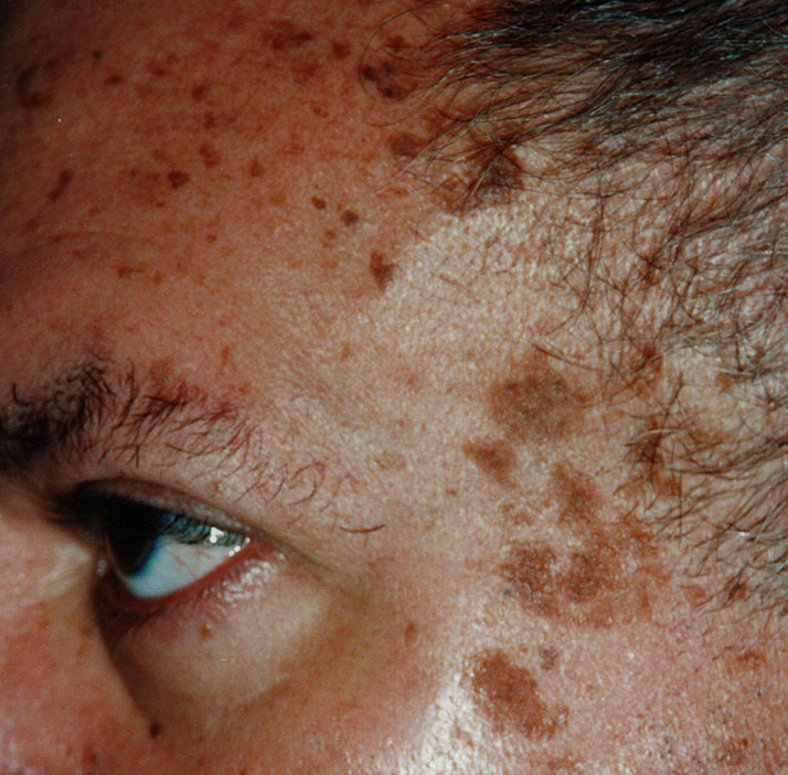 photo of patient before sebbhoroeic keratosis treatment